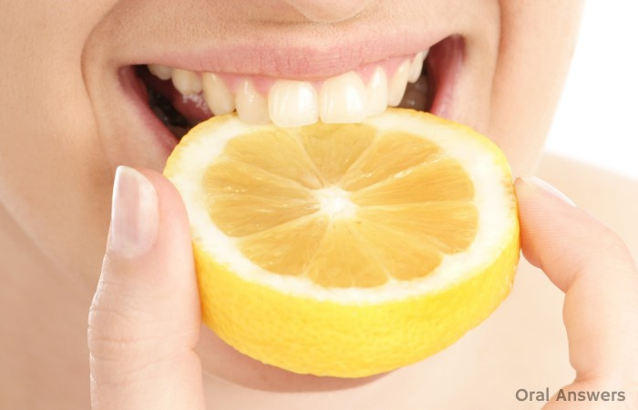 Lemon Citrus Can Cause Tooth Acid Erosion