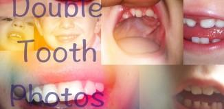 Double Tooth Photos