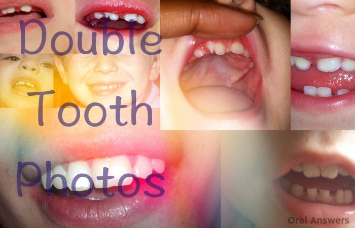 Double Tooth Photos