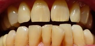 Dental Craze Lines - Hairline Cracks in Your Teeth
