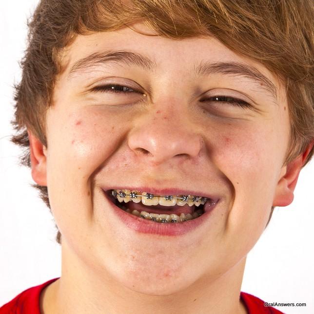 Teen teen boy braces fuck porn